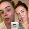 Fairy Naturally Acne Remove Face Pack